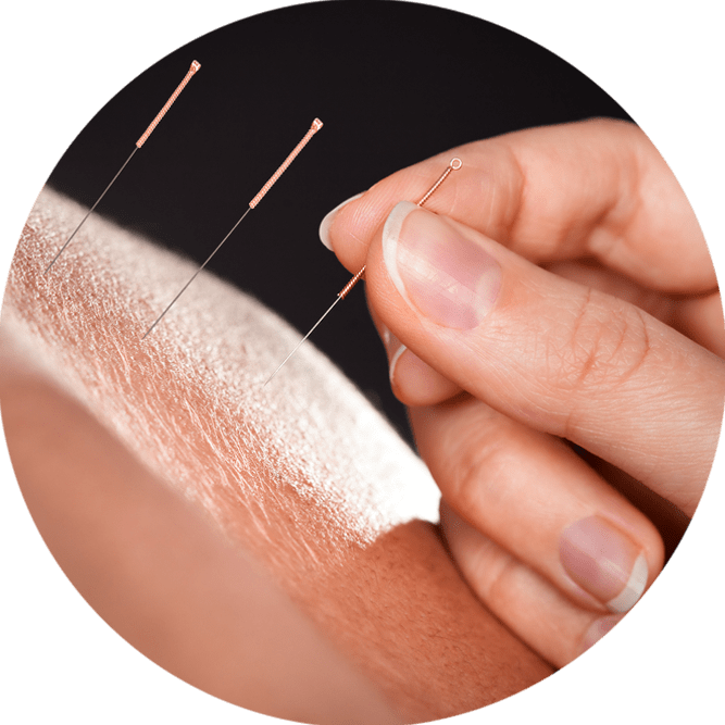 acupuncture for painful menstruation